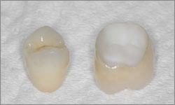ZIRCONE-couronne-dentaire-sans-métal